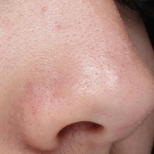 Черни точки по носа