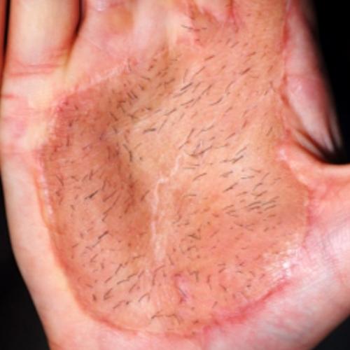 Придобита хипертрихоза след кожна присадка