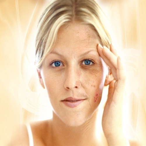 Стареене на кожата