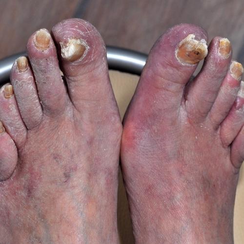 gubichki po noktite